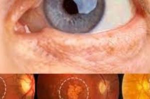 SUS oferece novo tratamento para pacientes com degeneração da retina